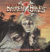 Stitched Up de Broken Bones - Punk-Hardcore
